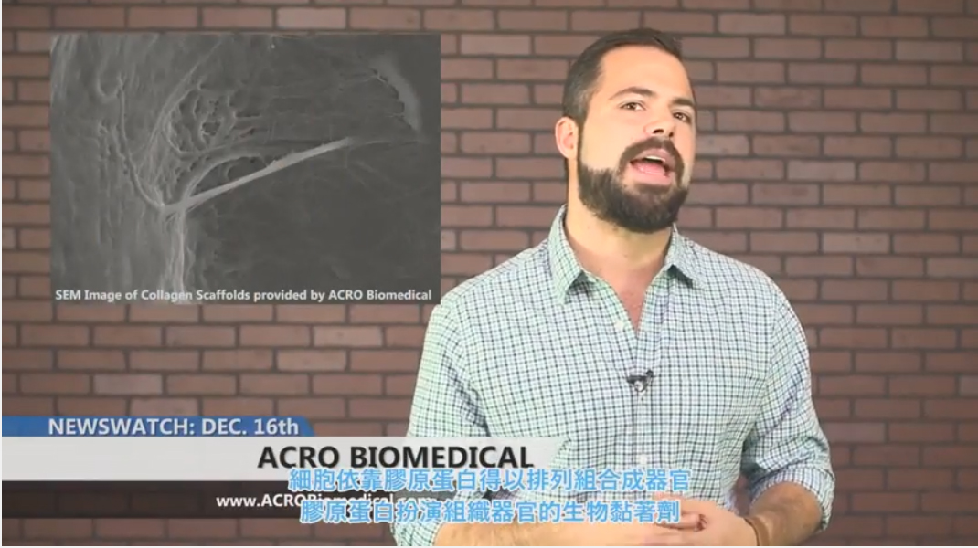 Discovery Channel Broadcast  :ACRO Biomedical - Cornea Graft